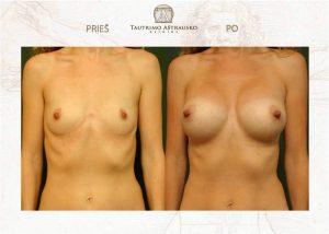krūtų didinimas implantais prieš ir po
